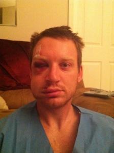Nate's Concussion